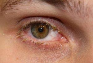 Blepharitis Tony